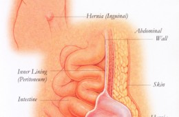 Hernia : Frequently asked Questions